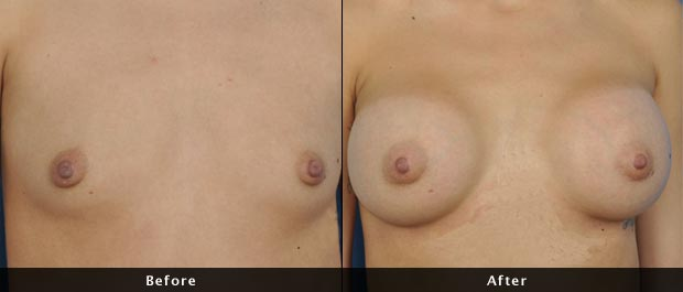 breastaug001-f