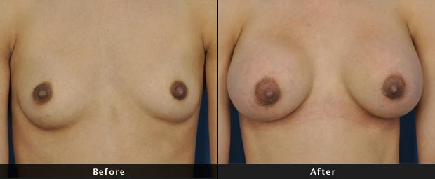 breastaug002-f