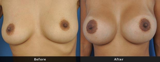 breastaug003-f