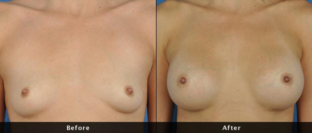 breastaug004-f