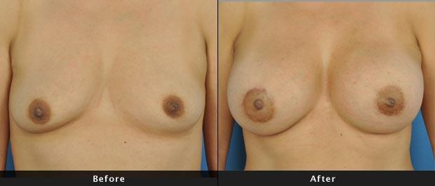 breastaug005-f