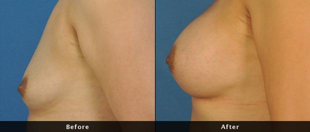 breastaug005-s