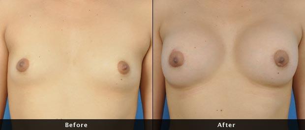 breastaug006-f