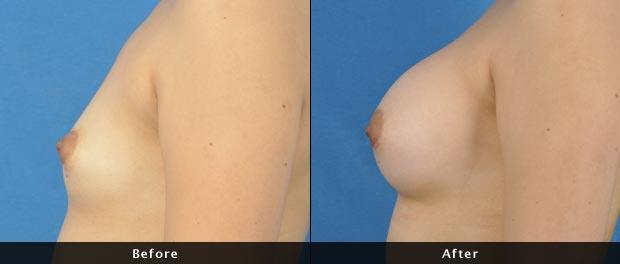 breastaug006-s