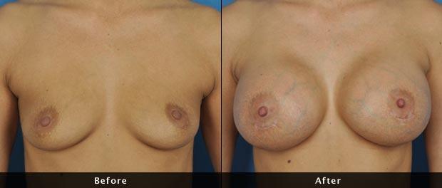 breastaug007-f