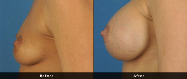 breastaug007-s