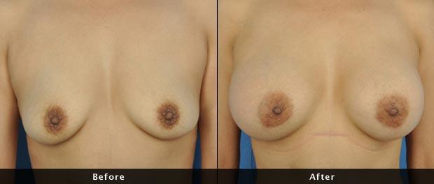 breastaug008-f