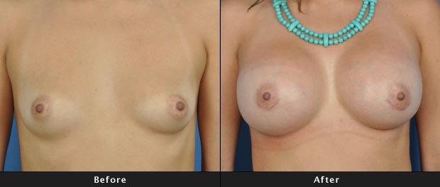 breastaug009-f