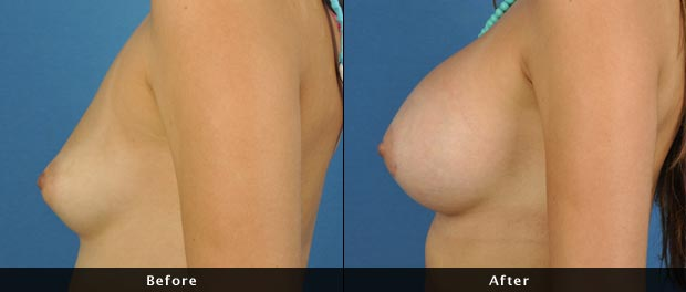 breastaug009-s