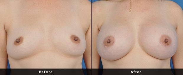 breastaug010-f