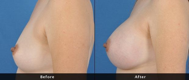 breastaug010-s
