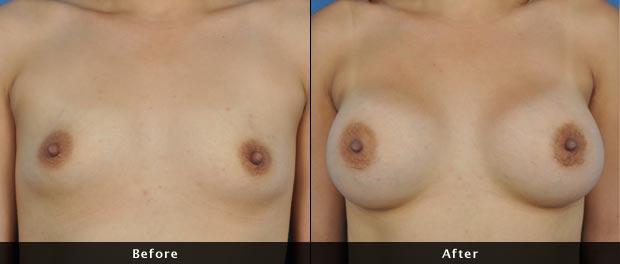 breastaug011-f