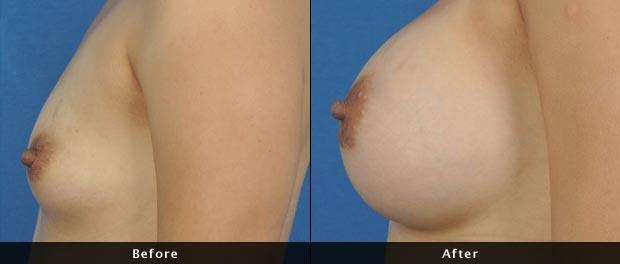 breastaug011-s
