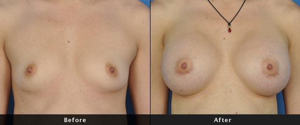 breastaug012-f
