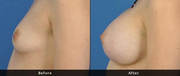 breastaug012-s