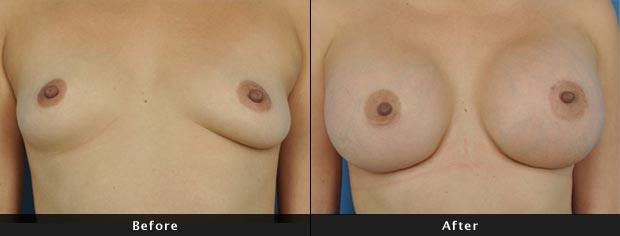 breastaug013-f