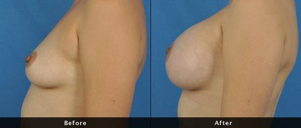 breastaug013-s