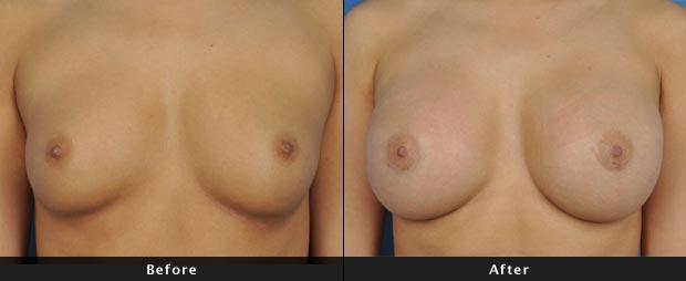 breastaug014-f