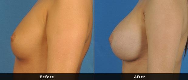 breastaug014-s