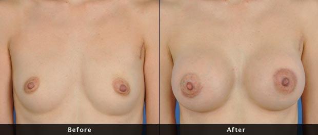 breastaug015-f
