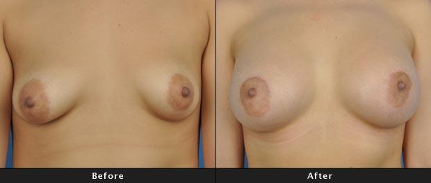 breastaug016-f