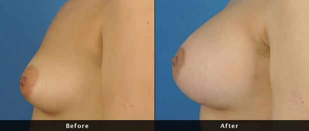 breastaug016-s