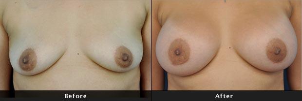 breastaug017-f