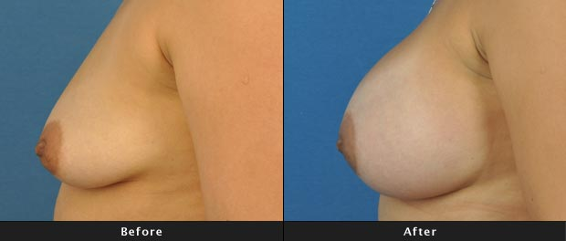 breastaug017-s