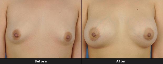 breastaug018-f