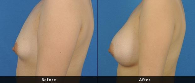 breastaug018-s