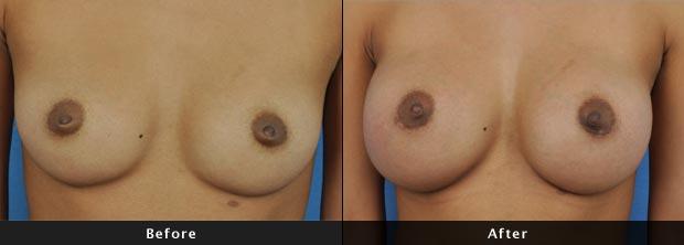 breastaug019-f