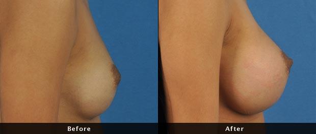 breastaug019-s