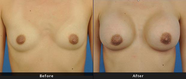 breastaug020-f