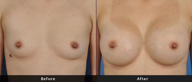 breastaug021-f