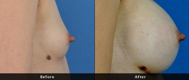 breastaug021-s