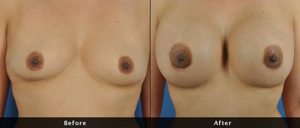 breastaug022-f