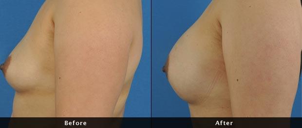 breastaug022-s