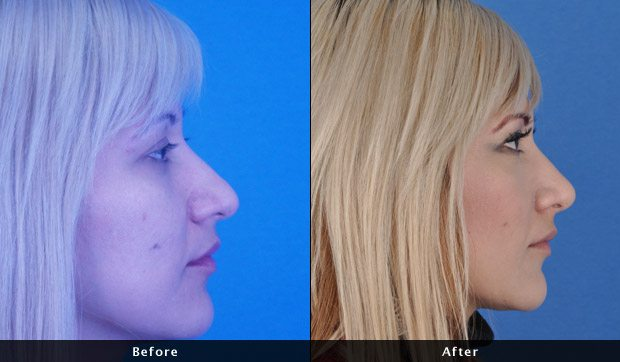 Nose Job - Rhinoplasty - Before and After