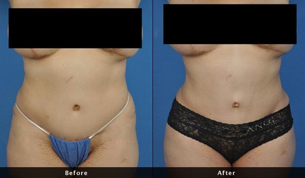 Liposuction of the torso