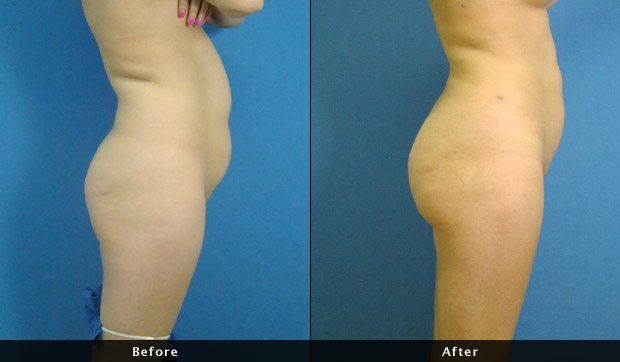 Brazilian Butt Lift - Before and After