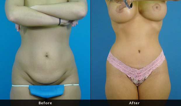 Abdominoplasty - Before & After