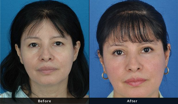 Fat Transfer To The Face - Before and After