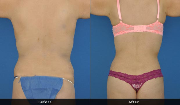 liposuction of the torso