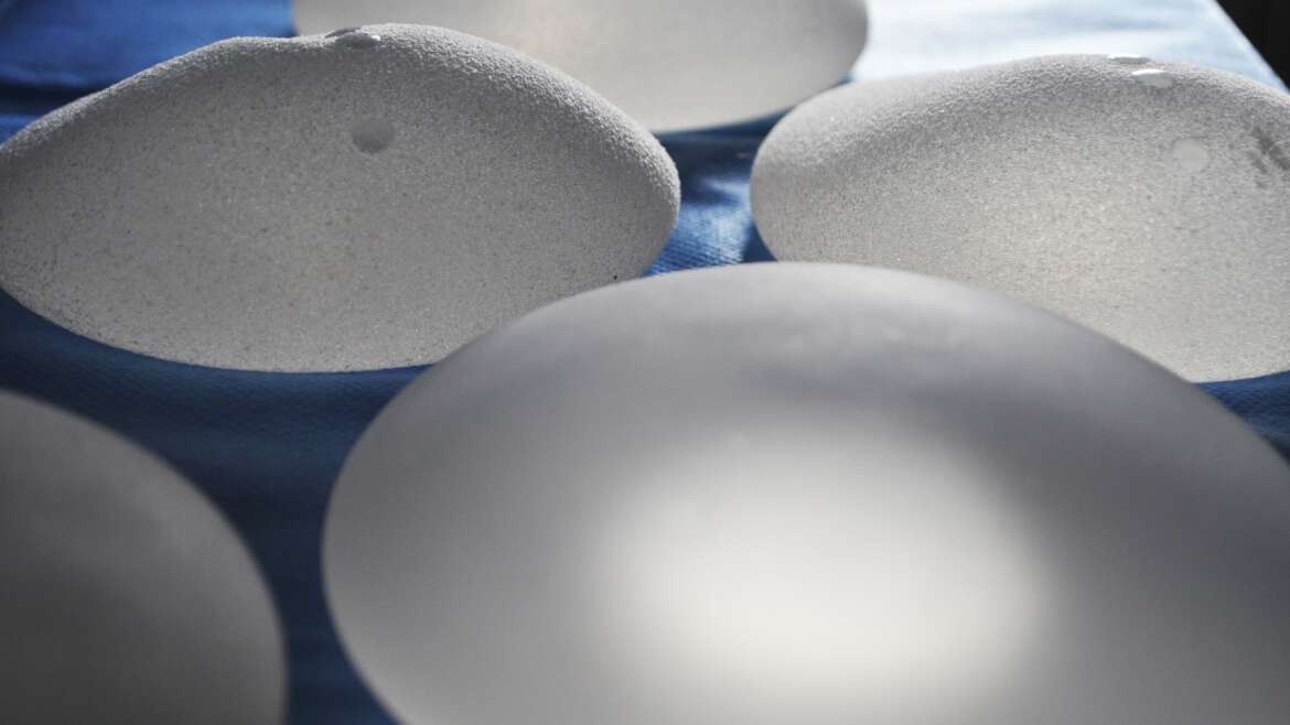 Houston Breast Implants: How Long do they Last?